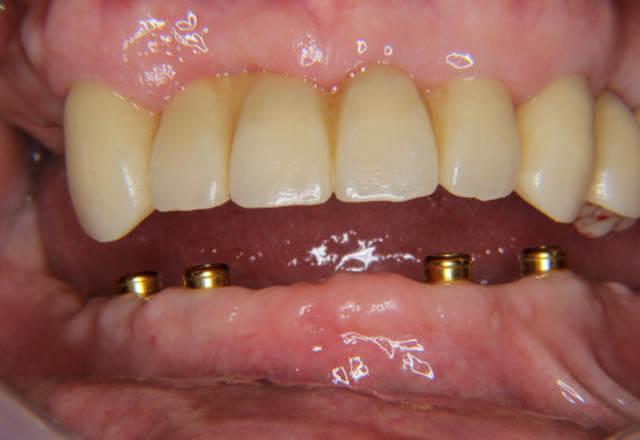 ロケーターインプラントによるフルデンチャー補綴治療の症例の写真、その3