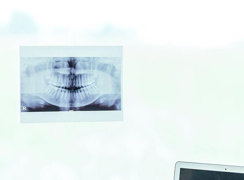 歯並びのレントゲン写真